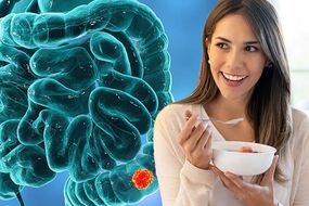 Bowel cancer: This popular snack could lower the risk of developing the condition