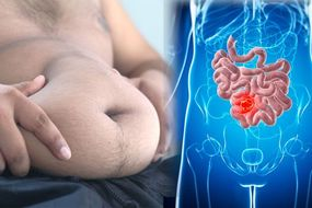 Bowel cancer: This exercise may help to fight the disease says study - do you do this?