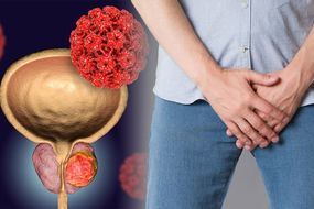 Prostate cancer - the sexual symptom you should never ignore