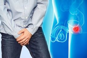 Prostate cancer: Following this diet may help to prevent aggressive form of the disease