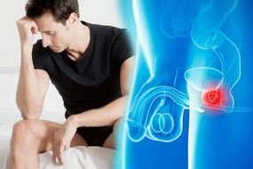 Prostate cancer symptoms: This unpleasant sensation may signify the disease has spread