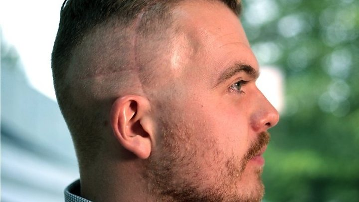 Cancer treatment: 'Men should talk about hair loss'