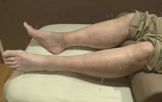 Avera Medical Minute: Acupuncture for those battling cancer