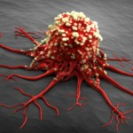 7 things you didn't know could cause cancer
