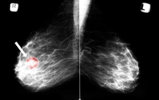 Mammography Cuts Risk for Fatal Breast Cancers: New Data